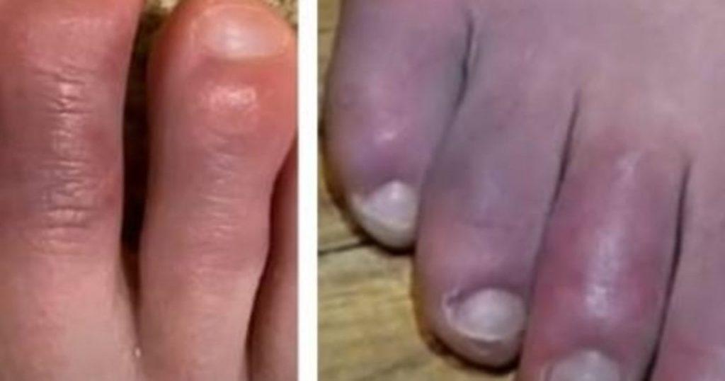 piedi covid